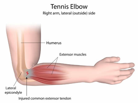 Tennis Elbow - Physio Leeds