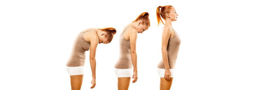 Osteoporosis Posture -PhysioLeeds