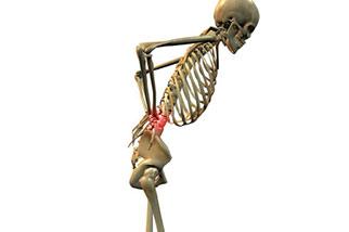 Musculoskeletal - Skeleton